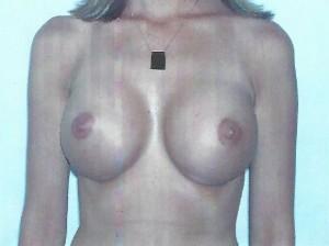 Implant