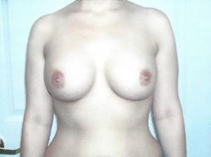Implant10